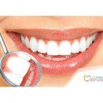 دانتوں کی صحت