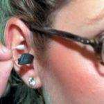 کم قوت سماعت کا علاج ممکن
