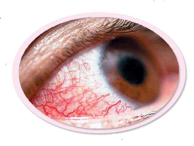 آشوب چشم