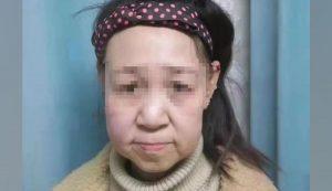 انوکھی بیماری نے 15 سالہ چینی بچی کو بوڑھی خاتون بنا دیا