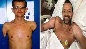 دنیا کا پہلا بازوؤں کا ٹرانسپلانٹ آپریشن، معذور شخص کو 23 سال بعد ہاتھ مل گئے